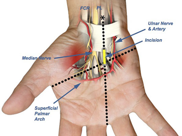 Palmar Fascia Sparing Technique