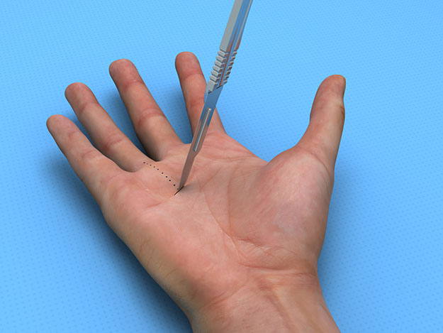S2S Trigger Finger Release